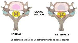 Estenosis de canal Doctor Alberto Marqués