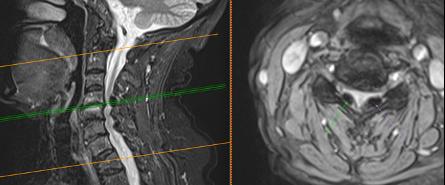 estenosis-de-canal-cervical