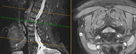 estenosis-de-canal-cervica